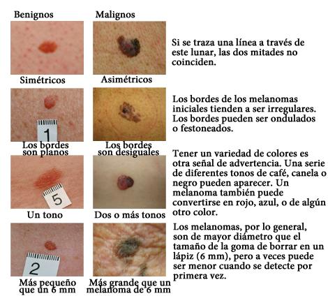 Los casos de melanoma en España se triplicarán en 15 años