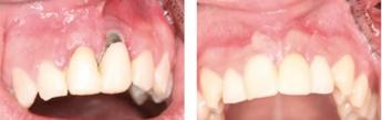 ¿Cuánto dura un implante dental?