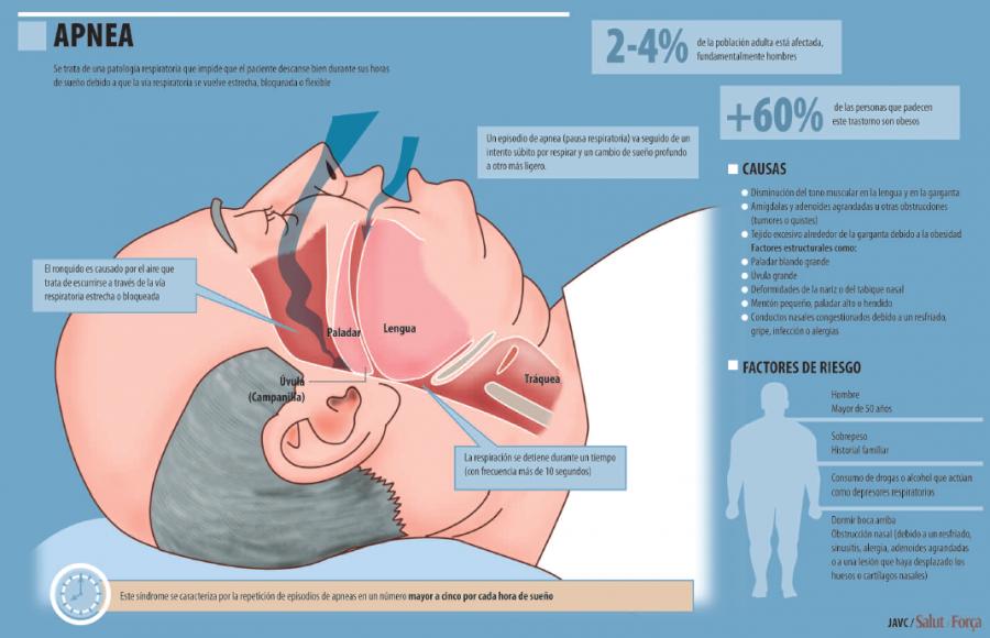 Científicos desarrollan pruebas mas simples y precisas para diagnosticar la apnea del sueño