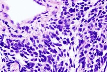 Identifican genes relacionados con la respuesta inmunitaria a los tumores