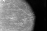 Avanzan en la predicción de la metástasis en las operadas de cáncer de mama
