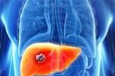 Demuestran la eficacia de un medicamento contra el cáncer de hígado avanzado