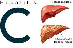 Nuevos tratamientos rebajan a la mitad en 3 años la infección de hepatitis C en Navarra