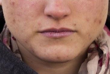 Falsos mitos del acné que hay que desmontar