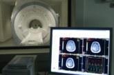 La CUN destaca el papel del PET para diagnósticos tempranos de Alzheimer