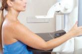 Más de 170.000 mujeres navarras atendidas por el programa de detección precoz del cáncer de mama