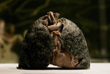 Un test genético para el diagnóstico molecular en cáncer de pulmón