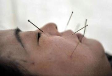 Más de la mitad de los españoles confía en la acupuntura y la homeopatía