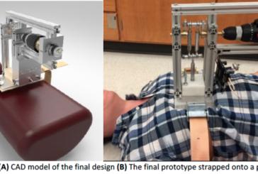 Crean un resucitador cardiopulmonar automático con un motor de taladro adaptado