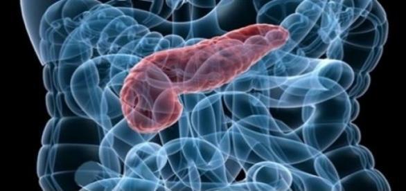 Vínculo inesperado entre cáncer de páncreas e inflamación - NAVARRA ...