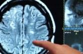 Descubren una proteína que mejora la supervivencia neuronal tras un ictus
