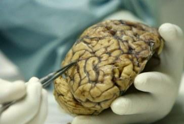 Hallan en ratones cómo neutralizar al glioblastoma, un letal tumor cerebral
