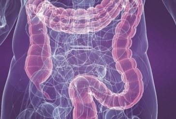 Descubierto un nexo entre compuestos químicos y enfermedades inflamatorias intestinales