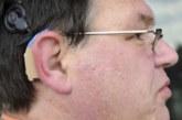 En Navarra se vendieron 9.300 audífonos en el último año