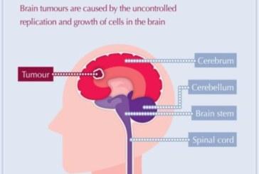 La CUN probará un nuevo tratamiento que inocula virus contra tumores cerebrales