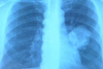 Descubren que bloquear un gen detiene la progresión del cáncer de pulmón