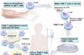 CAR T contra el cáncer hematológico: esperanza para algunos casos irreversibles