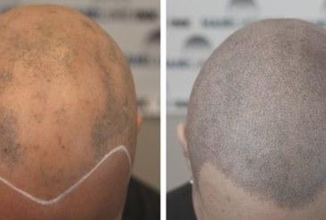 ¿Quién se puede hacer un implante capilar?