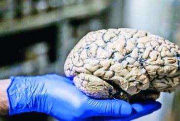 Logran restaurar funciones cerebrales en un cerdo horas después de muerto