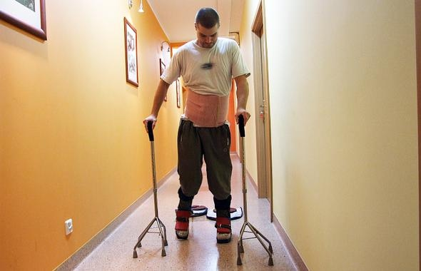 Un hombre paralizado vuelve a caminar tras un trasplante de células olfativas