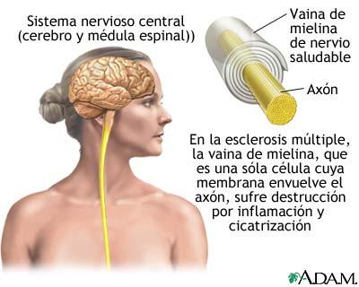 Navarra registra cada año alrededor de 30 nuevos casos de esclerosis múltiple