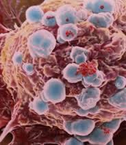 """Científicos descubren cómo """"apagar"""" las células con cáncer"""