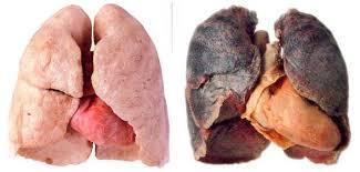 Boehringer Ingelheim presenta los resultados de la primera comparación directa entre dos tratamientos dirigidos contra el cáncer de pulmón