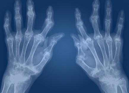 Desarrollan biomarcadores para tratamiento de artritis reumatoide