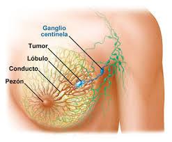 Una nueva terapia bloquea el crecimiento del cáncer de mama más maligno