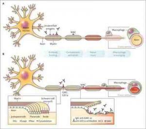 inmunopatogenia-sindrome-Guillain-Barre