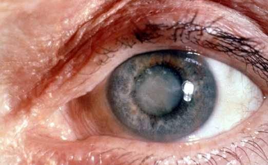 Las terapias basadas en células madre son efectivas para regenerar ojos con cataratas