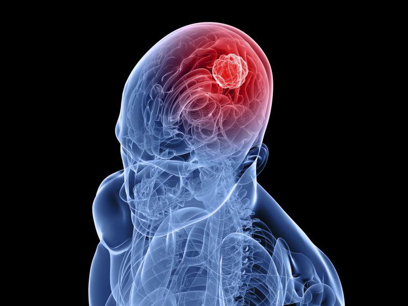 Identifican un mecanismo clave en la formación de tumores cerebrales