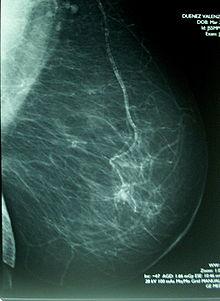 Siete perspectivas contra el cáncer de mama metastásico