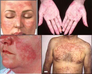 """Lupus: """"Hay que tener una fortaleza especial para convivir con la enfermedad"""""""