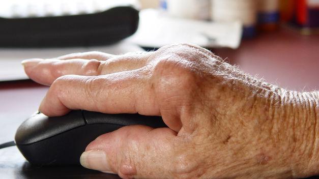 Un estudio relaciona la artrosis sintomática de mano con un mayor riesgo de infarto