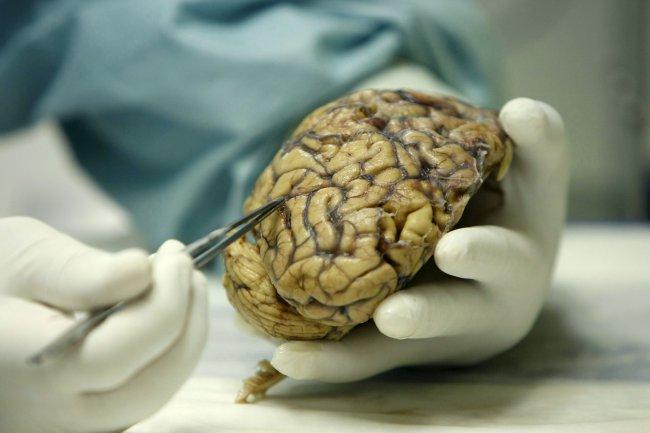 La inteligencia artificial detectará el alzhéimer con 15 años de antelación