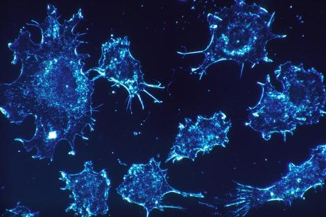 Una tesis crea estrategias para diseñar fármacos antitumorales más seguros