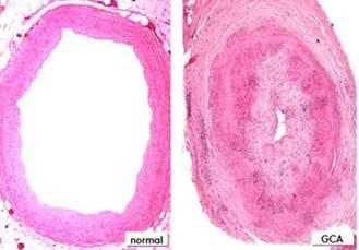 La genética abre la puerta a nuevos fármacos contra una patología vascular