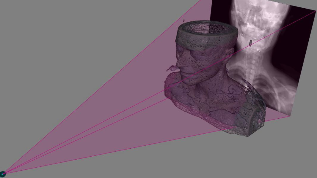 Un nuevo dispositivo obtiene imágenes en 3D a partir de radiografías