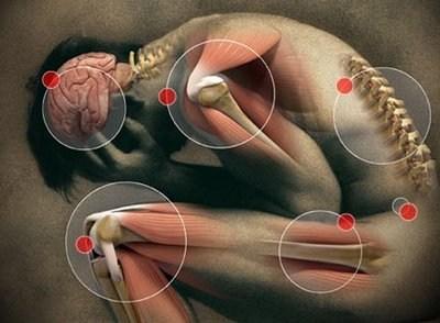Día Mundial del Dolor: El dolor neuropático, uno de los más complejos