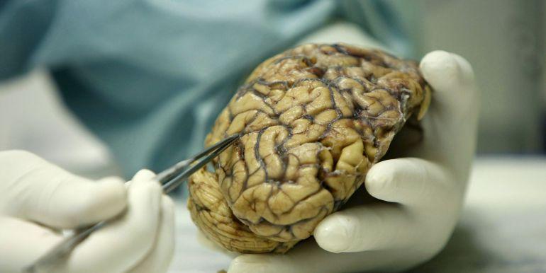 Ensayan vacunas de inmunoterapia contra el cáncer cerebral