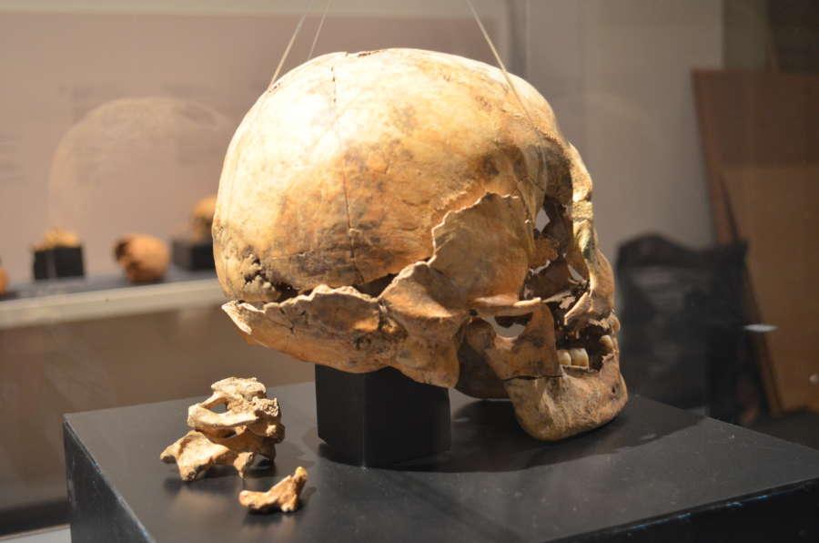 Restos óseos desde la Prehistoria al sigo XIX en una muestra en Museo Navarra