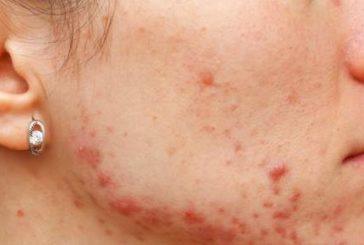 Consejos para acabar con el acné en adultos
