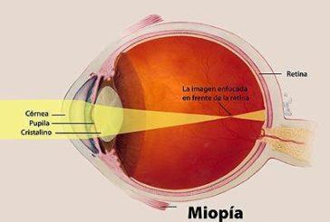 Miopía: la otra pandemia del siglo XXI, según el CGCOO