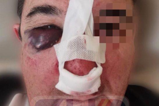 SUP denuncia violencia extrema contra los policías